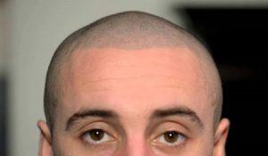 hair tattoo on head